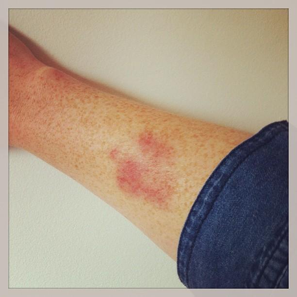 KB bruise